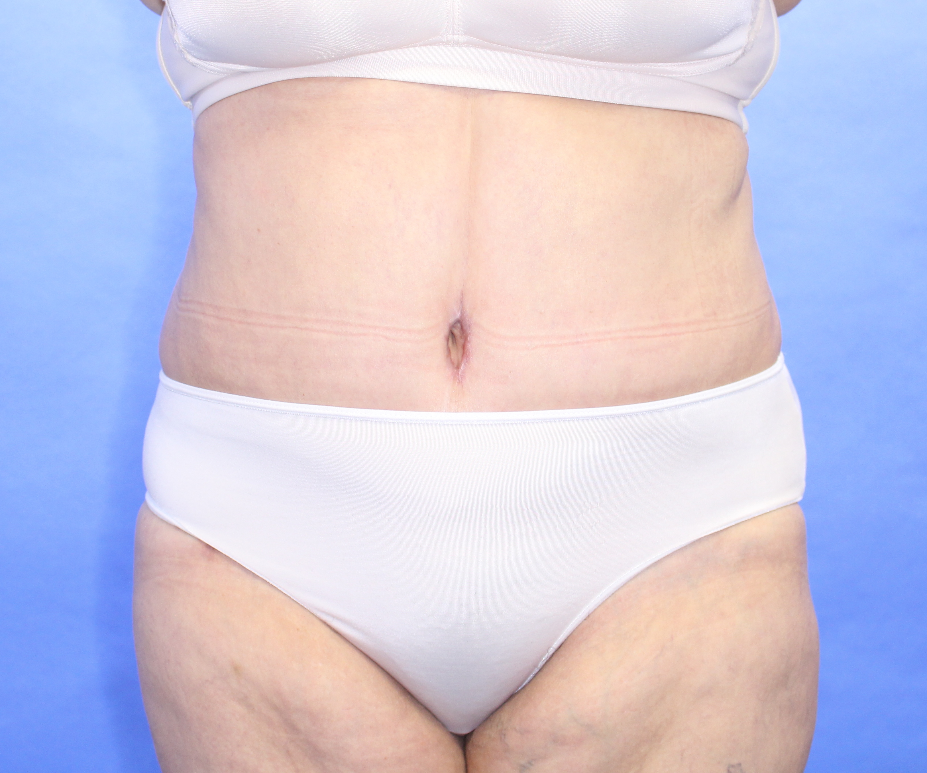 Abdominoplasty after image