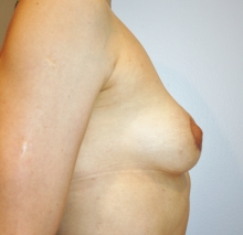 Breast Lift after image