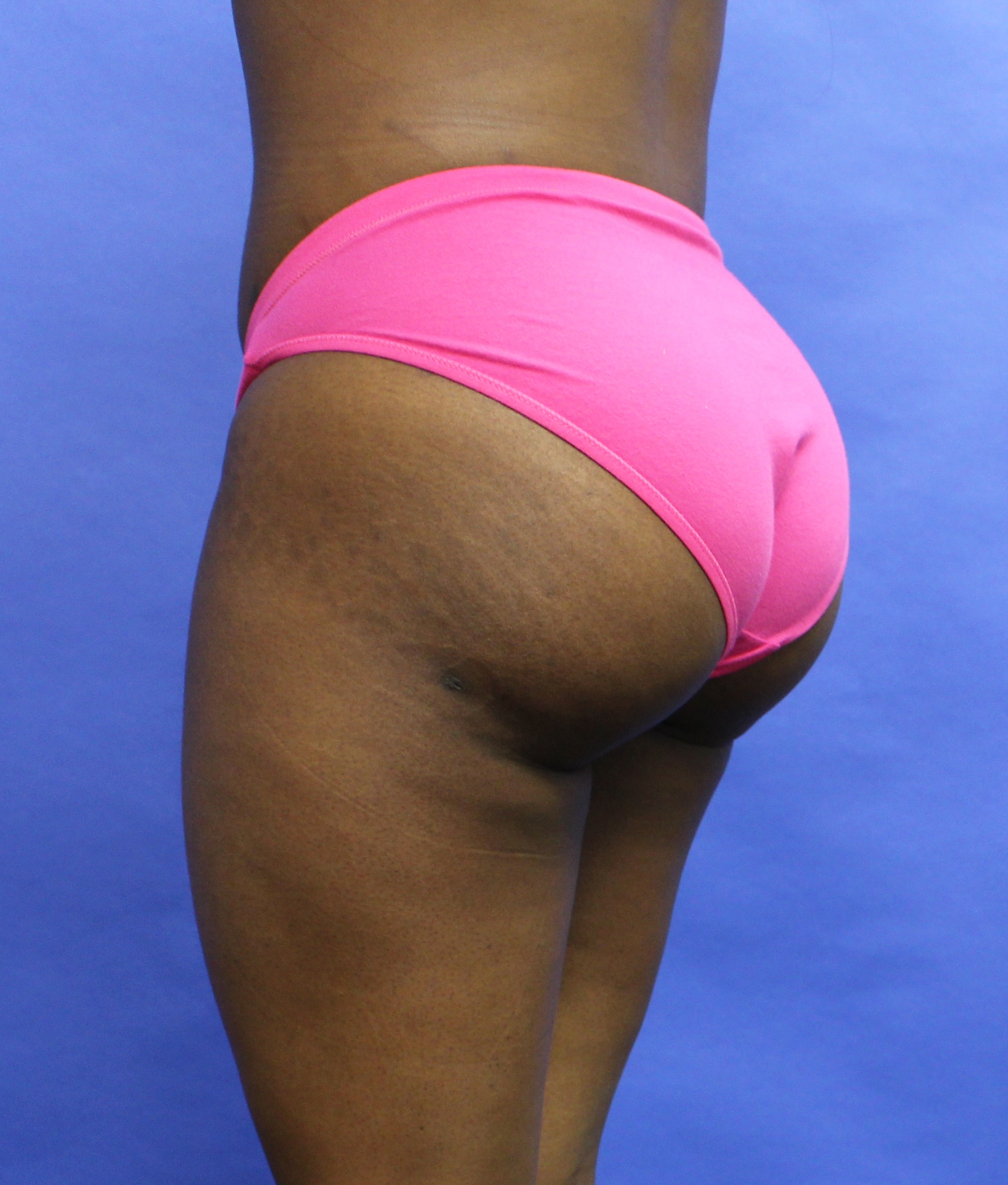 Buttock augmentation  after image