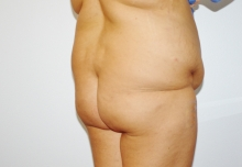 Buttock augmentation before image