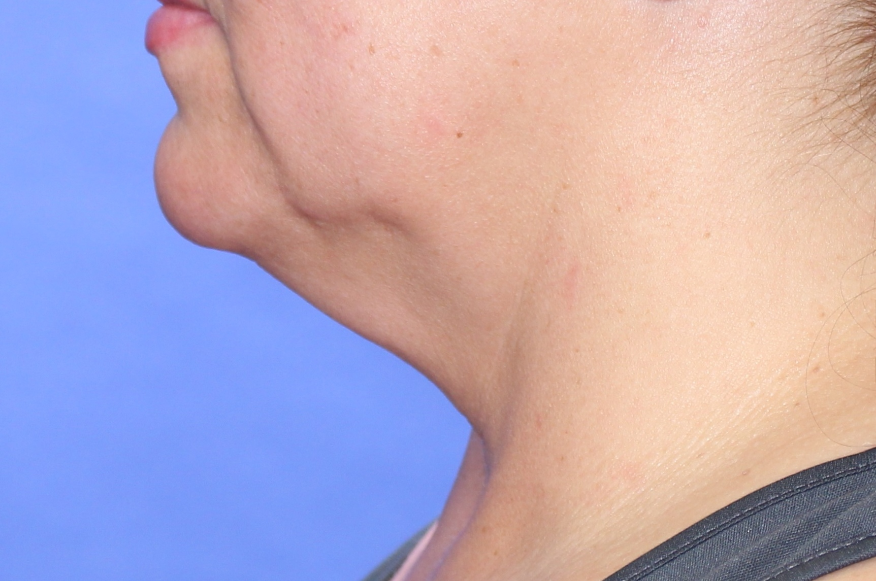 Necklift before image