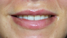 Lip Augmentation after image