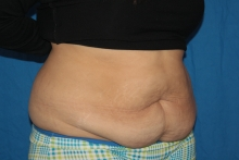 Liposuction before image