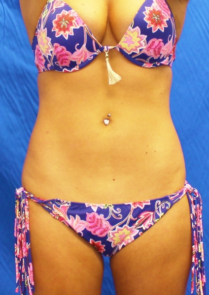 Liposuction after image