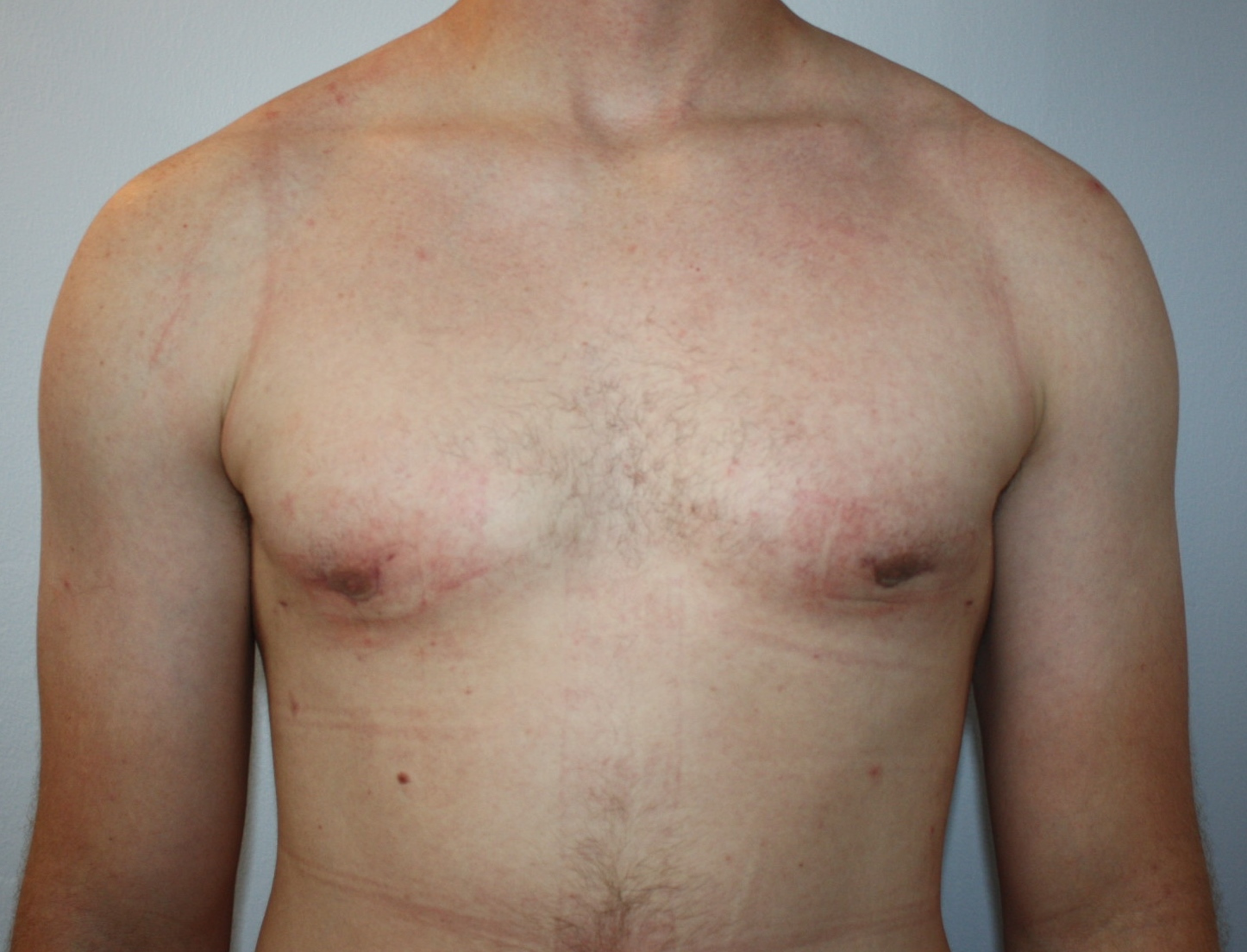 Male Breast Reduction after image