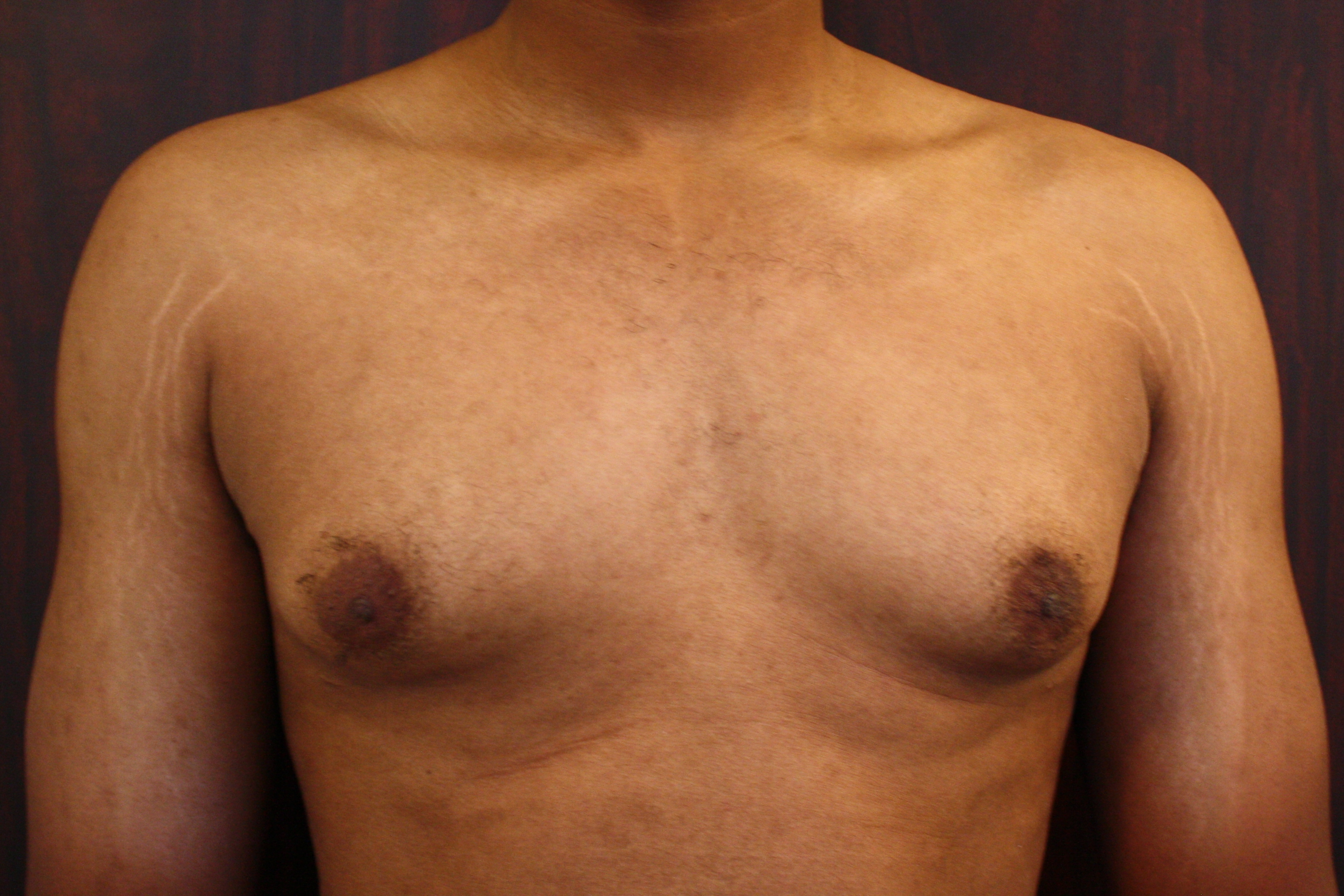 Male Breast Reduction before image