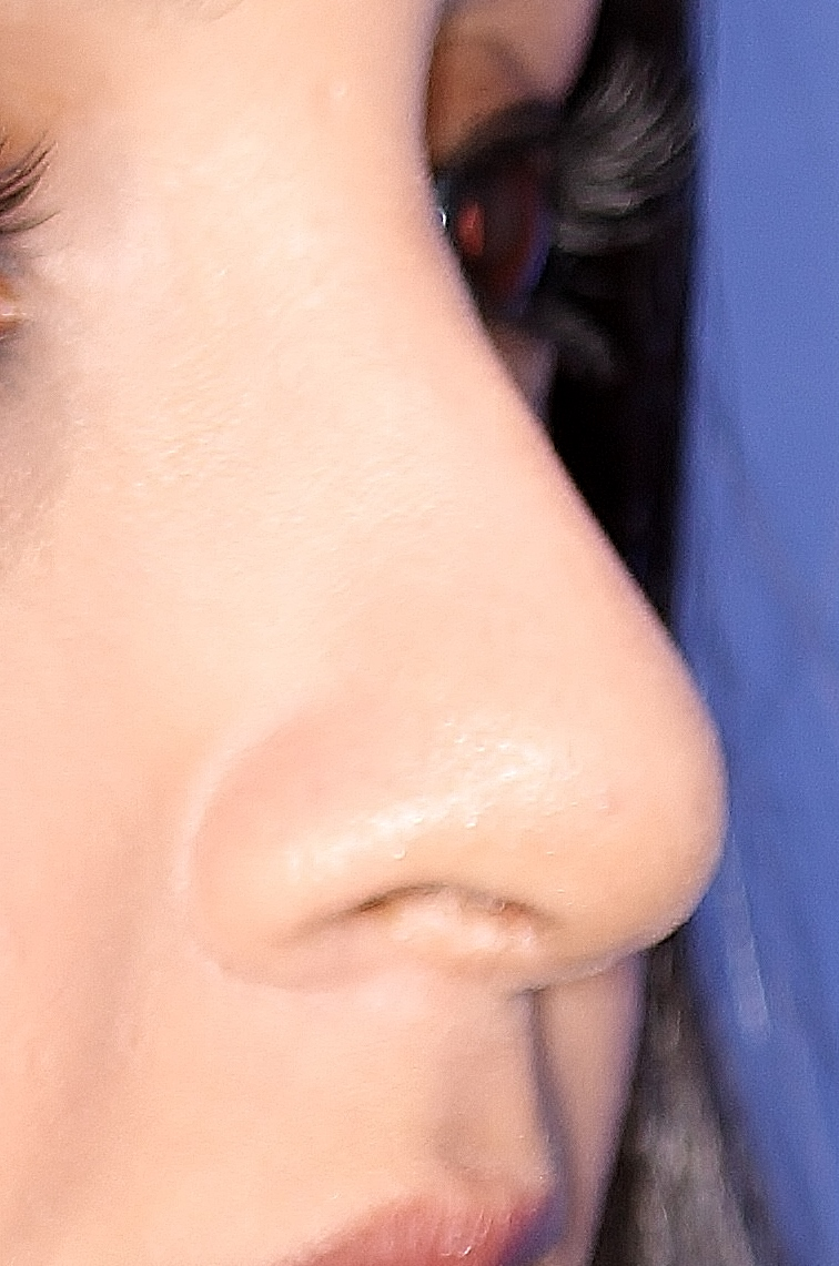 Rhinoplasty after image
