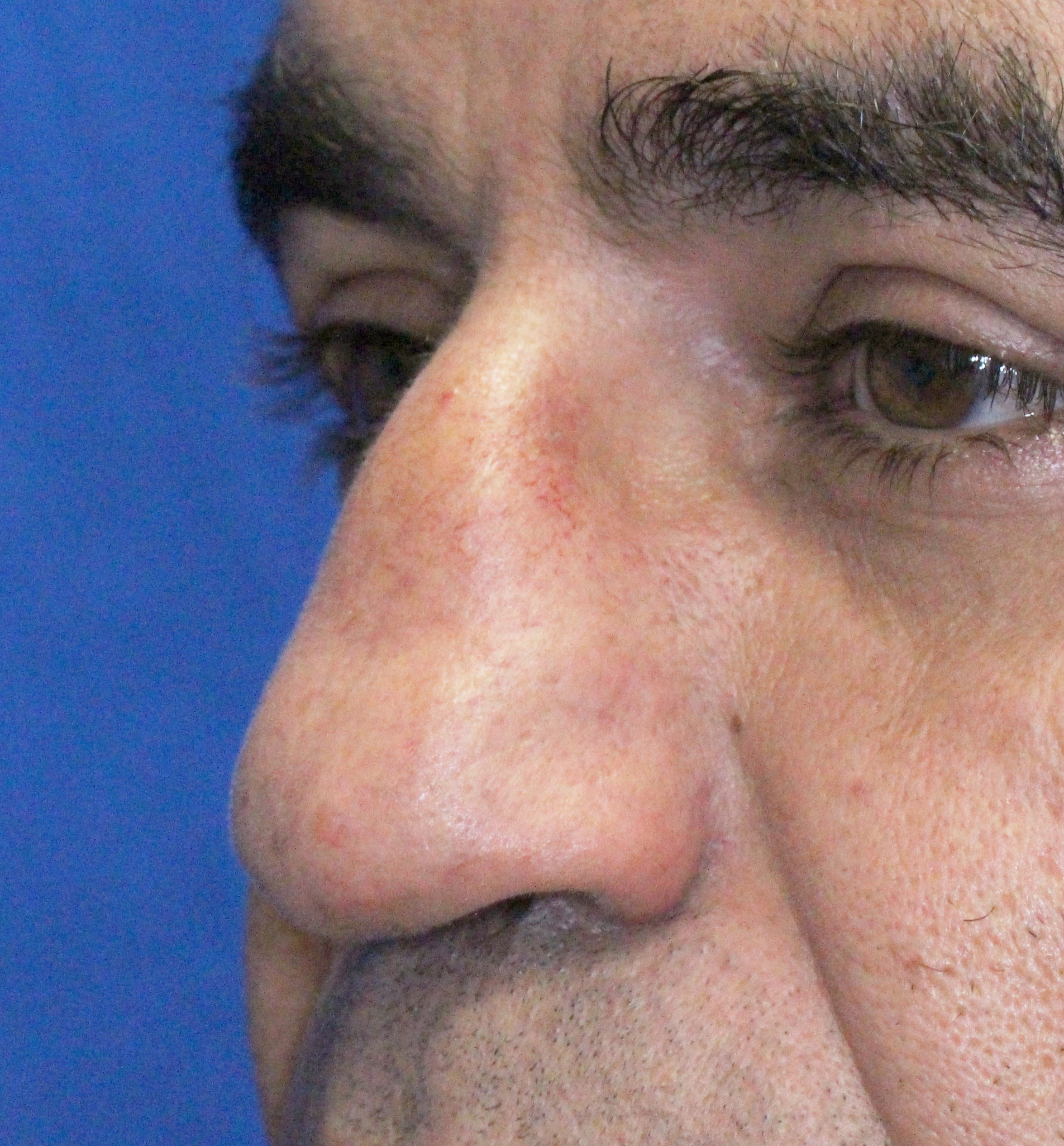 Rhinoplasty before image