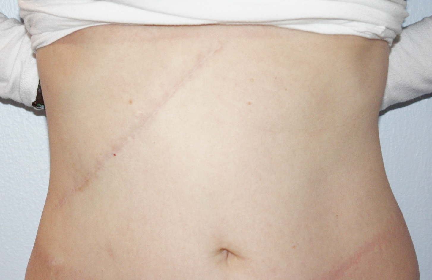 Scar revision after image
