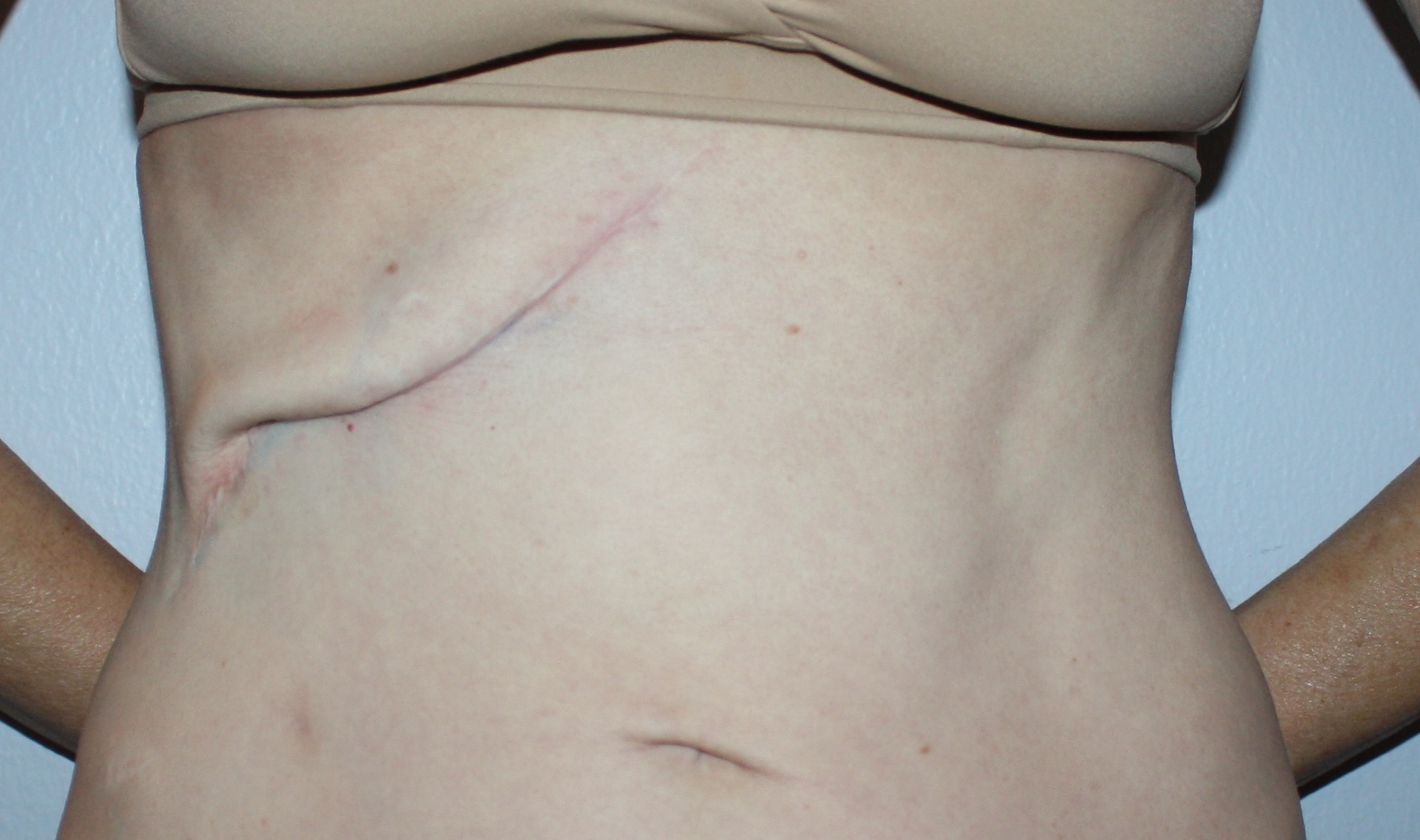 Scar revision before image