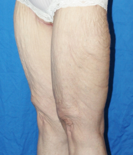 Thigh Lift after image