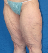Thigh Lift before image